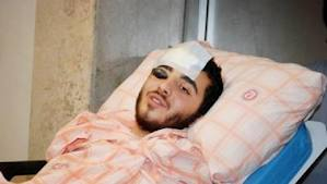 Barış Barışık, remains in serious condition in hospital after being struck at close range by a police gas canister.